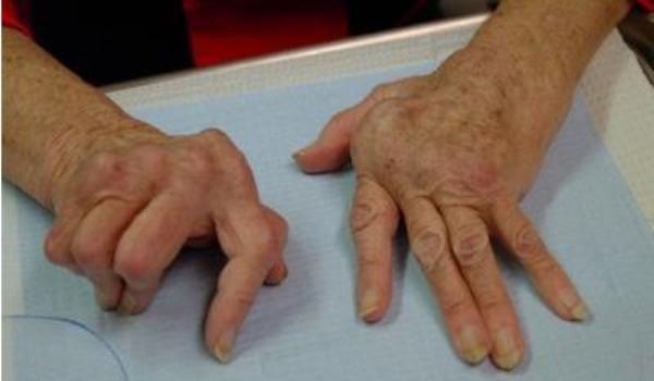 Refacerea cartilajului articular