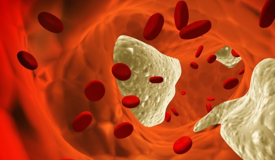Alimente care îți curăță vasele de sânge