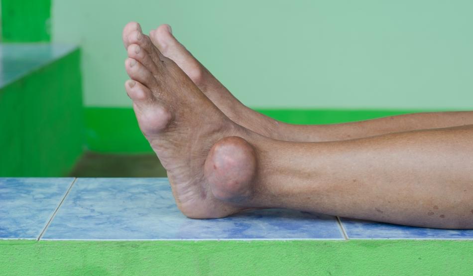 artrita clamidială a genunchiului care tratează