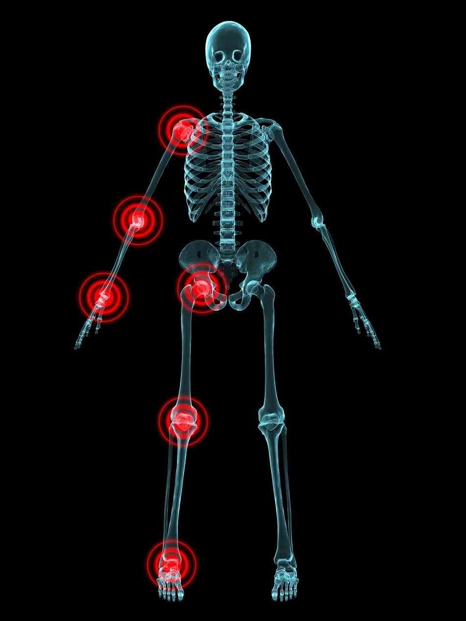 Inflamaţia: focul din corp care ne poate ucide