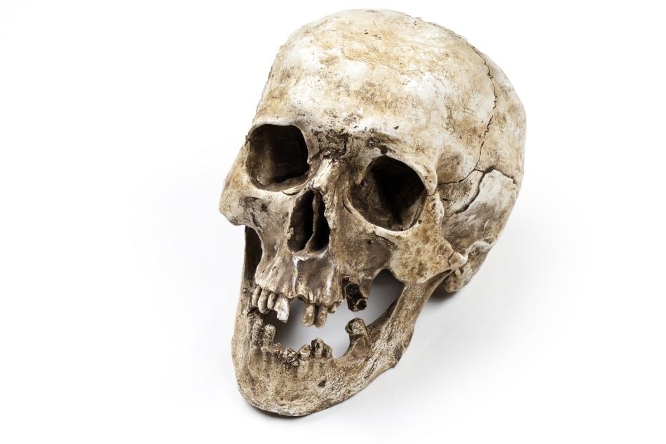 Craniu al unei victime tutsi