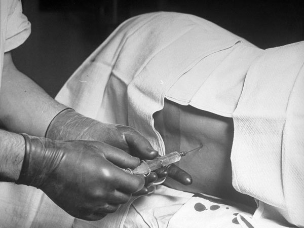 August Bier a inventat anestezia spinală, numită şi rahi-anestezie