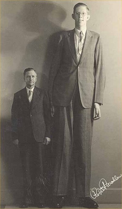 Cea mai înaltă persoană din istorie, Robert Wadlow, suferea de acromegalie, atingând 2,72 metri înălţime în momentul morţii.