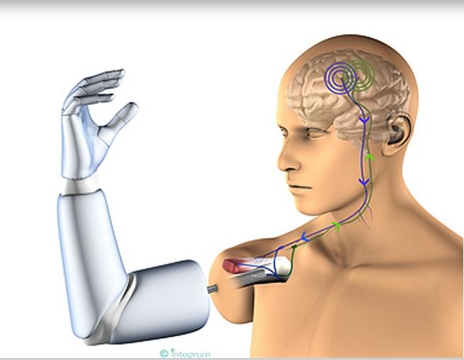 Fuziunea om-maşină: proteze implantate direct pe os