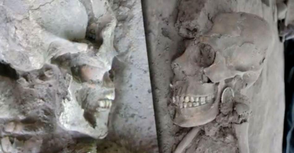Mutilarile dentare, cred specialiştii, făceau parte dintr-un rit al trecerii de la copilărie la adolescenţă.