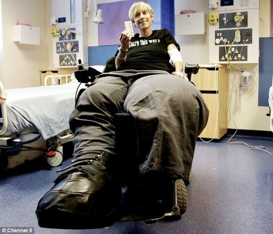 Un nou tratament a dus la o uşoară descreştere în dimensiuni a picioarelor lui Mandy Sellars.