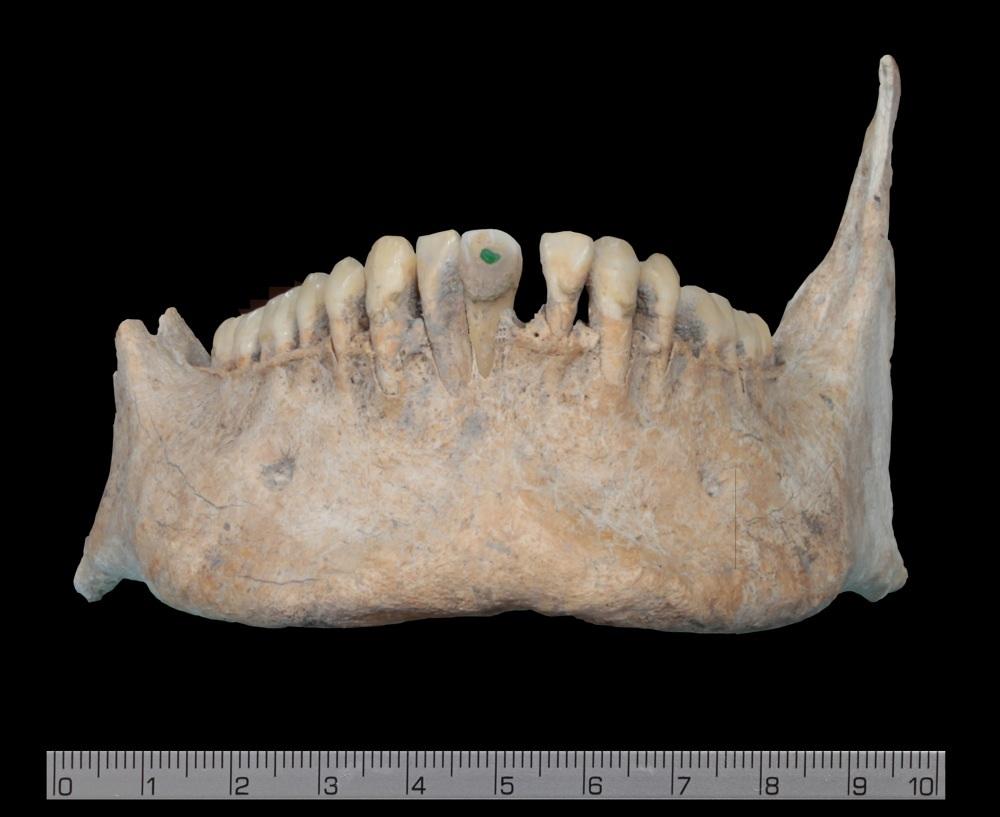 Unele dintre cadavre aveau decoraţii din jad pe dinţi, lucru care susţine ideea că victimele de la Uxul au fost nobili