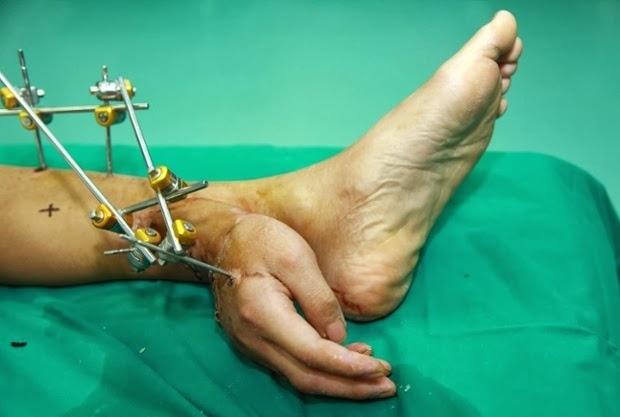 Medicii chinezi au salvat braţul retezat într-un accident al unui bărbat, conectându-l temporar - aproximativ o lună - la glezna pacientului, pentru a-i asigura fluxul sanguin necesar până la operaţia de reataşare