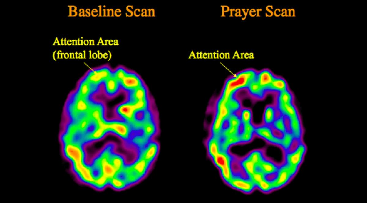 Creierul unei persoane în timp ce se roagă (dreapta) şi în stare de relaxare (stânga)