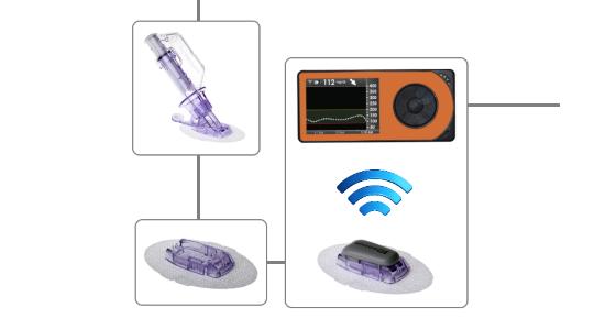 Informaţiile despre nivelurile de glicemie sunt transmise către o aplicaţie de pe smartphone, care ia decizii la fiecare cinci minute şi indică apoi pompei, prin Bluetooth, cantitatea de insulină şi de glucagon care trebuie furnizată.
