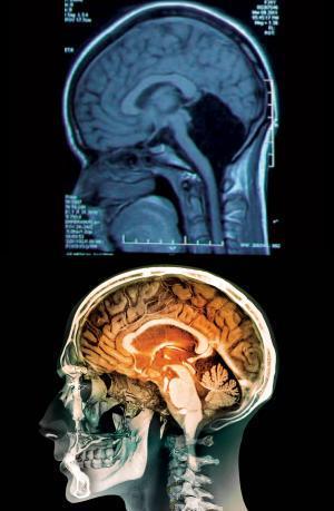 Tomografia pacientei fără cerebel (sus) comparativ cu tomografia unui creier normal (jos)