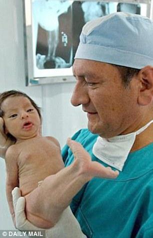 Milagros Cerron a fost operată şi medicii au reuşit să-i separe picioarele