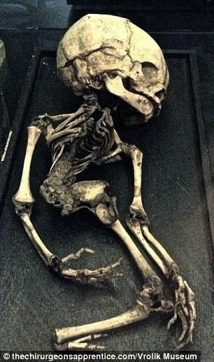 Schelet cu malformaţie, aflat în muzeul Vrolik din Amsterdam