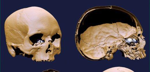 Scanarea craniului lui Rene Descartes