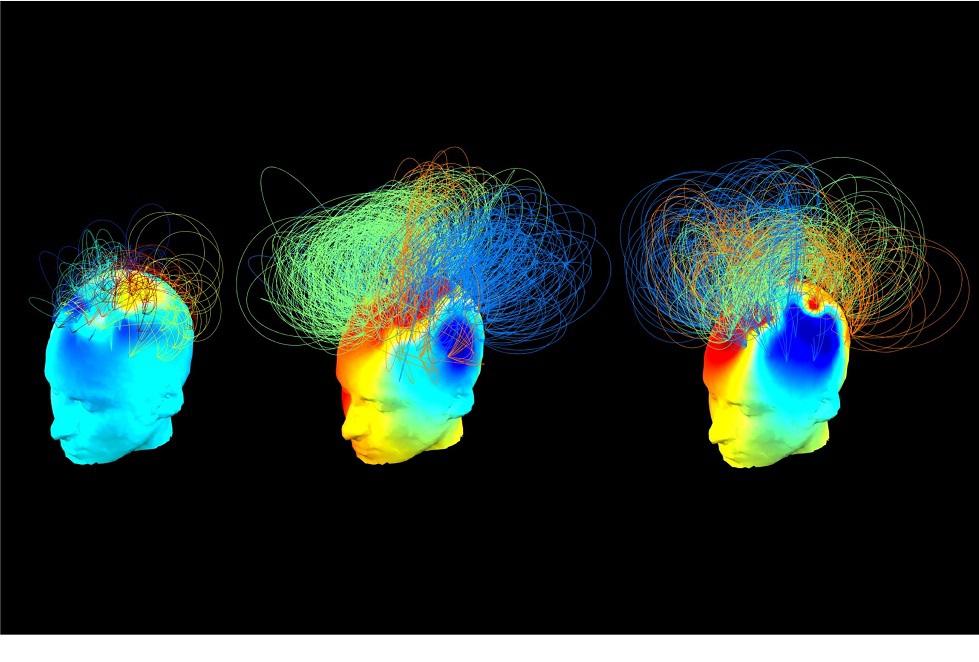 Activitatea cerebrală la trei persoane: cea din stânga şi cea din mijloc sunt în stare vegetativă, iar cea din dreapta este sănătoasă. Persoana din stânga este inconştientă, dar cea din mijloc, deşi nu poate comunica, este conştientă