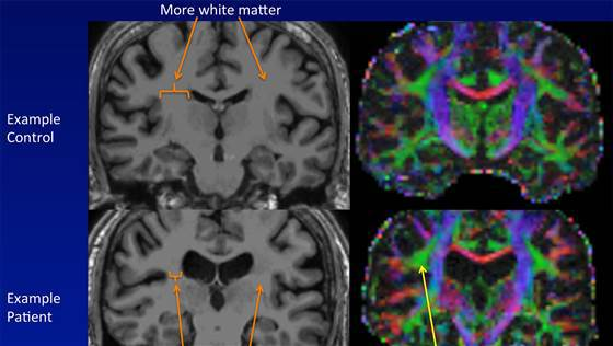 Creierul unei persoane sănătoase (sus) în comparaţie cu al unui bolnav (jos)