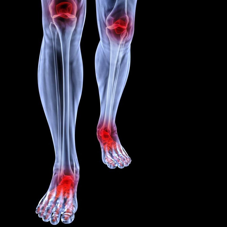 Articulaţiile membrelor inferioare au de dus o povară grea; nu e de mirare că suferim adesea  de dureri şi inflamaţii la nivelul lor.
