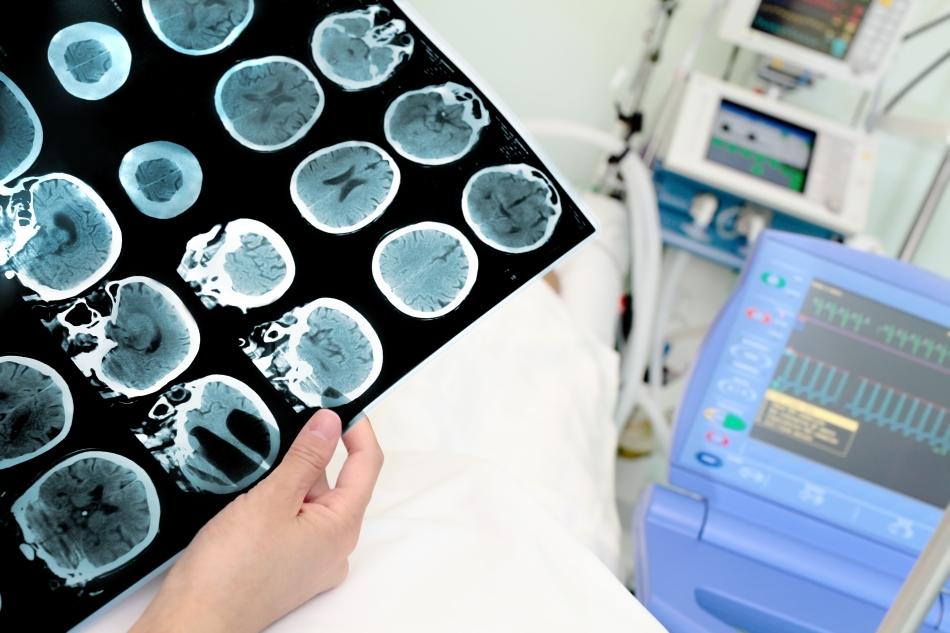 Creierul are nevoie de repaus, iar presiunea intracraniană trebuie să scadă