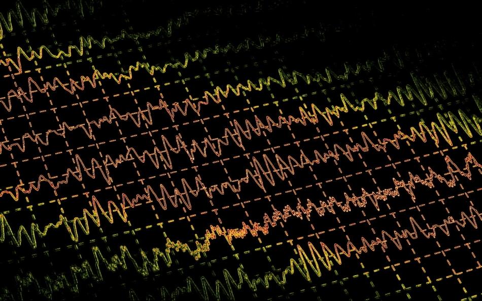 Electroencefalograma (EEG) este utilizată azi pe scară largă pentru confirmarea diagnosticului de epilepsie.