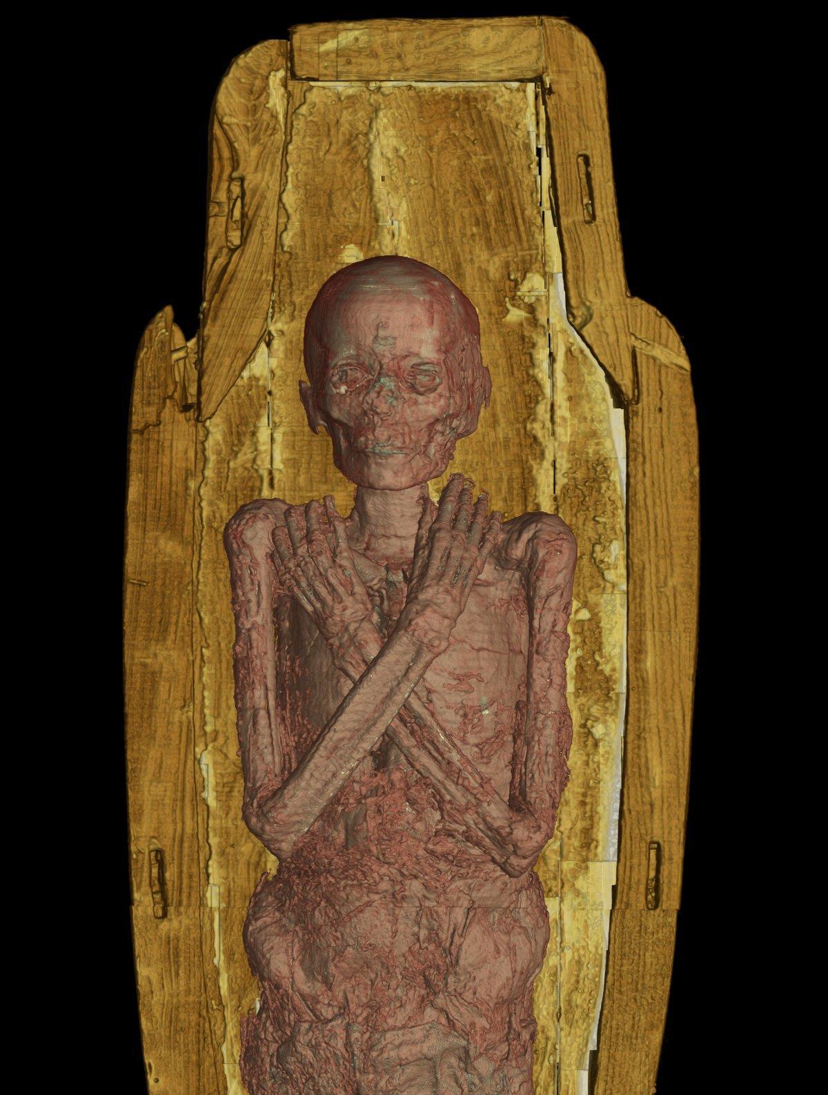 Imaginile care prezintă interiorul unei mumii